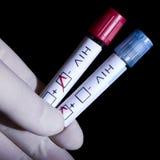 HIV positivo e negativo Immagini Stock Libere da Diritti