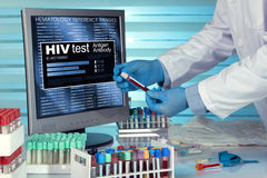 HIV test. technician in lab examining blood sample with reports stock photo