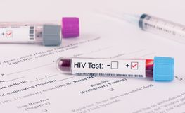 HIV Virus Lab Test form. HIV virus blood analysis collection tube with virology lab request. Serial number is random, labels and document are fictitious and stock images