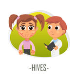 Hives medical concept. Vector illustration. Stock Photo
