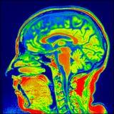 Hjärna sagital MRI Arkivbild