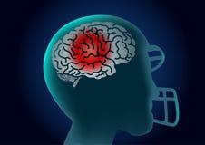 Hjärnan av den amerikanska fotbollsspelaren har en röd signal Royaltyfria Foton