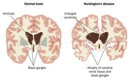 Hjärnan förtvinar i den Huntingtons sjukdomen Royaltyfri Foto