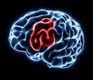 Hjärnan smärtar illustrationen Arkivfoto