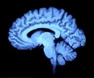 hjärnbildläsning Arkivbilder