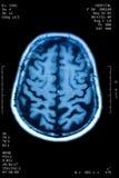 Hjärnresonans arkivbild