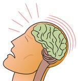 hjärnskakning Fotografering för Bildbyråer