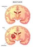 Hjärntumor stock illustrationer