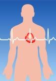 hjärt- arrhythmia Royaltyfri Bild
