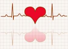 Hjärtaövervaka-Vektor Arkivfoton