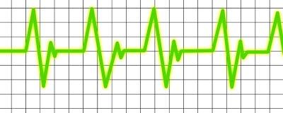 Hjärta övervakar Arkivfoto