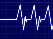 Hjärta övervakar Fotografering för Bildbyråer
