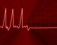 Hjärta övervakar vektor illustrationer