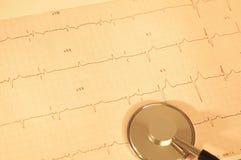 hjärtabildskärm Arkivfoton