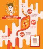 Hjärtabrännskada och GERD (sjukdomen för Gastroesophageal lågvatten) Arkivbilder
