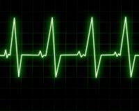 Hjärtatakt Arkivbilder