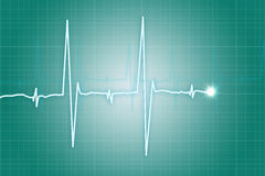 Hjärtataktcardiogram Royaltyfri Foto