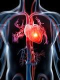 Hjärtinfarkt stock illustrationer