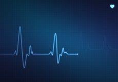 Hjärtslagbildskärm Arkivfoto