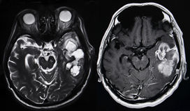 Hjärntumör, MRI Fotografering för Bildbyråer