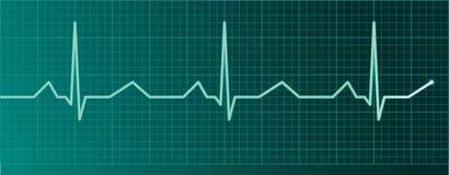hjärtabildskärmpuls Arkivbilder