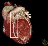Hjärtaförbikopplingskirurgi. CT-bildläsning rekonstruktion Arkivbilder