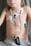 Hjärtakardiogram genom att använda Holter Royaltyfria Bilder
