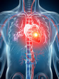 Hjärtinfarkt Arkivfoto