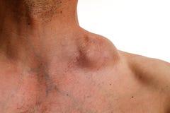 Hodgkin tumör - klumpig tumör - Hodgkin lymfkörtelcancer arkivbilder
