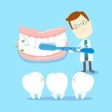 Hoe te om tanden te borstelen vector illustratie