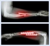 Hoger beeld: Breuk ellepijp en straal (Voorarmbeen), Lager beeld: Het werd in werking gesteld en intern vast met plaat en schroef Stock Foto
