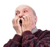 Hogere geschokte mens met geïrriteerd rood bloeddoorlopen oog royalty-vrije stock afbeeldingen