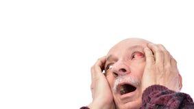 Hogere geschokte mens met geïrriteerd rood bloeddoorlopen oog stock afbeelding