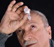 Hogere mens die een rood bloeddoorlopen oog druipen met oogdalingen stock foto