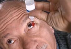 Hogere mens die een rood bloeddoorlopen oog druipen met oogdalingen royalty-vrije stock foto's