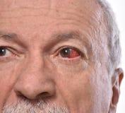Hogere mens met geïrriteerd rood bloeddoorlopen oog royalty-vrije stock afbeeldingen