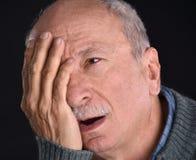 Hogere mens met geïrriteerd rood bloeddoorlopen oog die aan pijn lijden royalty-vrije stock afbeeldingen