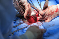 Hold the Uterus Macro. Surgeon pulls uterus out of the body holding by surgical tools close-up during the hysterectomy surgery Royalty Free Stock Images