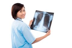Holding chest X-ray Royalty Free Stock Photo