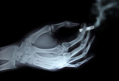 Holding cigarette. X-ray hand holding cigarette Stock Photography
