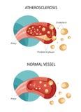 Holesterolplaques vector illustratie
