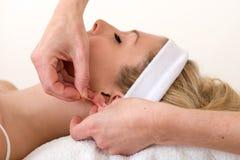 Homöopath, der eine Akupunkturnadel auf Ohr anwendet. stockfotografie