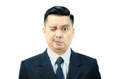 Hombre asiático con parálisis del ` s de Bell Foto de archivo