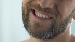 Hombre barbudo que mira los dientes en el espejo, enfermedad sufridora del pulpitis de la infección de la goma almacen de metraje de vídeo