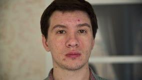 Hombre con acné