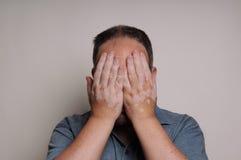 Hombre con la cara de ocultación del Vitiligo Imagen de archivo