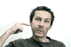 Hombre con la cara hinchada que sufre de dolor de muelas Foto de archivo