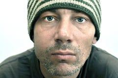 Hombre con la cara hinchada que sufre de dolor de muelas Imagenes de archivo