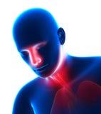 Hombre con la gripe - frío en la cabeza - estornudo aislado en blanco Fotografía de archivo libre de regalías