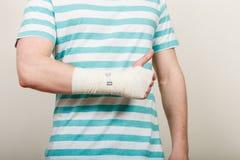 Hombre con la mano vendada que muestra el pulgar para arriba Foto de archivo libre de regalías